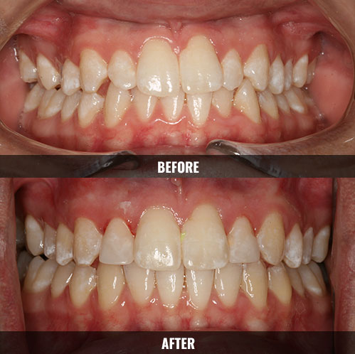 before-after-invisalign