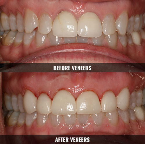 before-after-veneers2