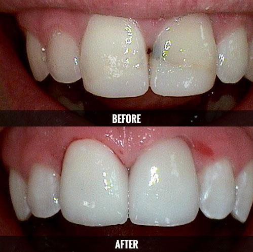 Anterior Cavity Restore