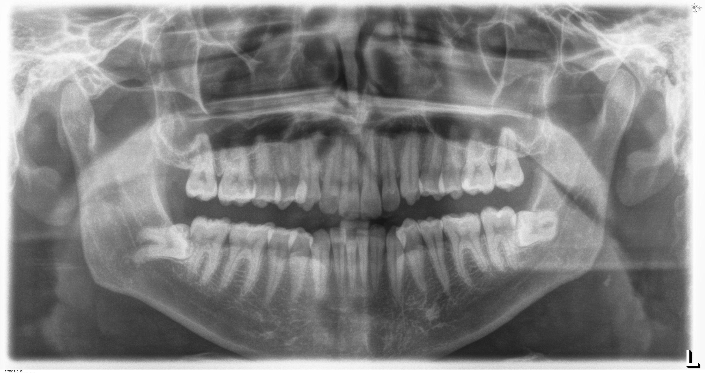 X-ray of Impact Wisdom Teeth