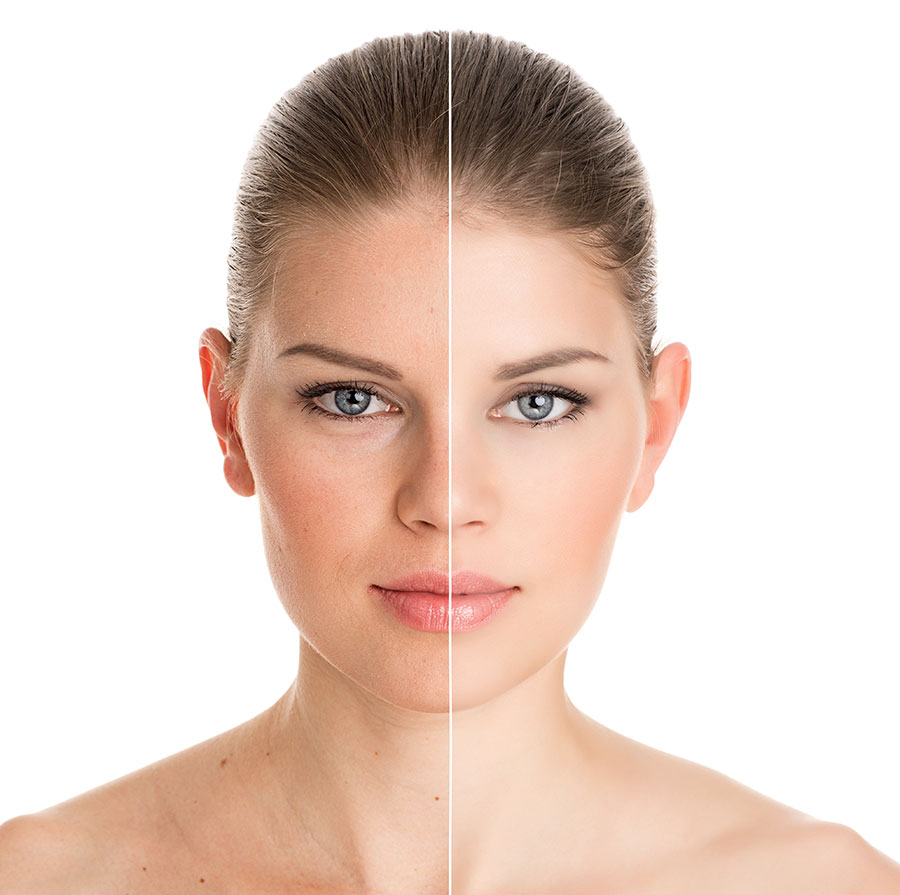 FACIAL INJECTABLES BRANDING IMG 2 copy