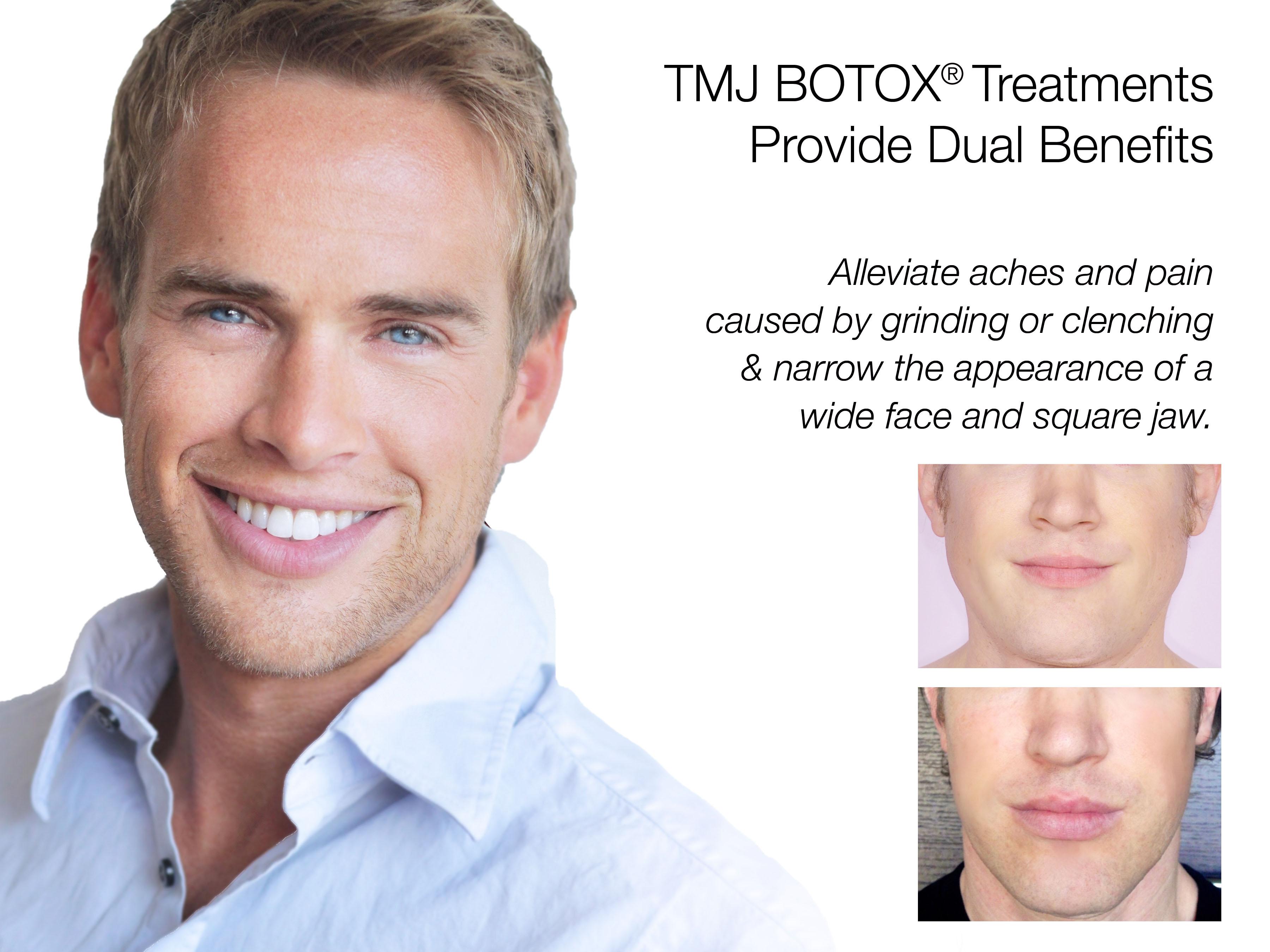 TMJ - facial slimming poster B_A copy 2