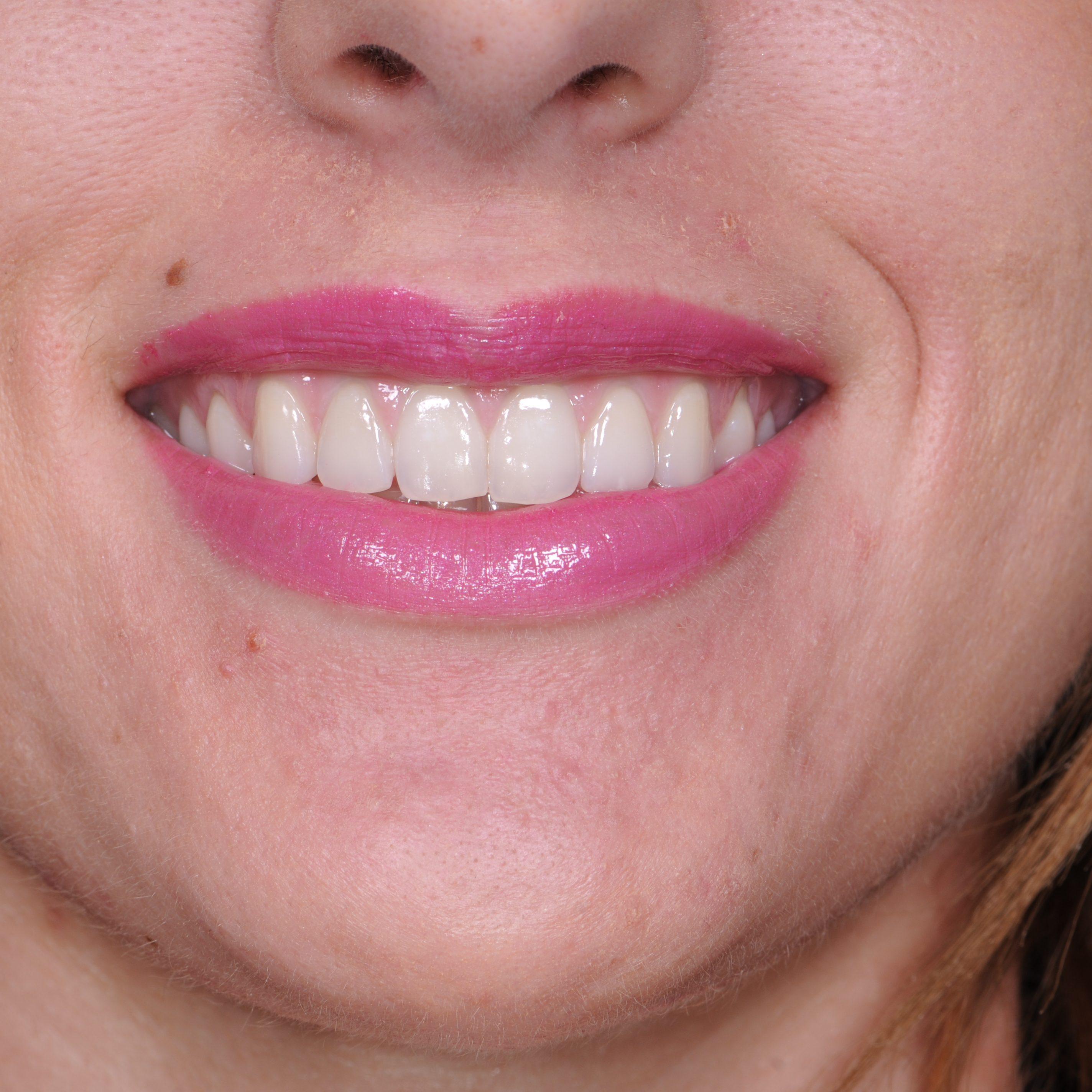 Gummy Smile - After - DentaSpa® 2013 copy
